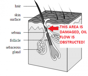 damaged hair follicle so pimple treatment is needed